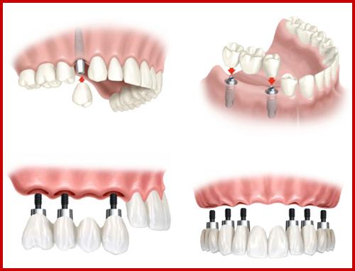 Cấy ghép 2 trụ Implant cho 3 răng bị mất hàm trên1