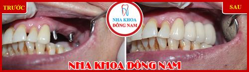 Cấy ghép 2 trụ Implant cho 3 răng bị mất hàm trên2
