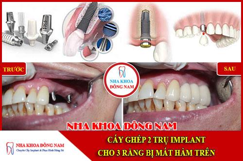 Cấy ghép 2 trụ Implant cho 3 răng bị mất hàm trên