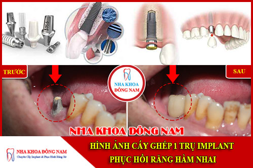 Hình ảnh cấy ghép 1 trụ implant phục hình răng đã mất hàm dưới