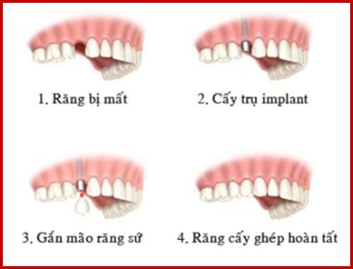 Hình ảnh cấy ghép 2 trụ implant và làm răng sứ 1