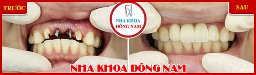 Hình ảnh cấy ghép 2 trụ implant và làm răng sứ 2
