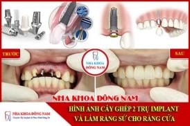 Hình ảnh cấy ghép 2 trụ implant và làm răng sứ
