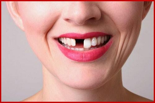 Hình ảnh cấy ghép 3 tru implant phục hồi 4 răng cửa bị mất 1