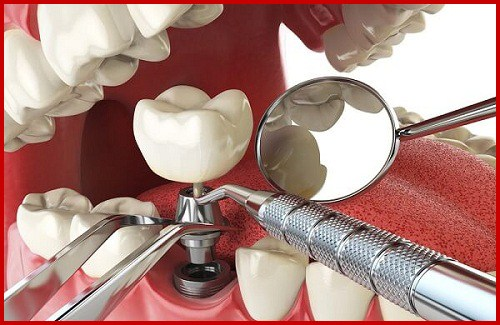 Hình ảnh cấy ghép 4 trụ implant và phục hình răng sứ hàm dưới 1