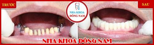 Hình ảnh cấy ghép 4 trụ implant và phục hình răng sứ hàm dưới 2