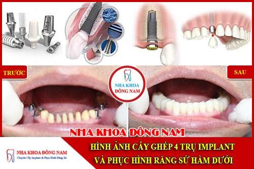 Hình ảnh cấy ghép 4 trụ implant và phục hình răng sứ hàm dưới