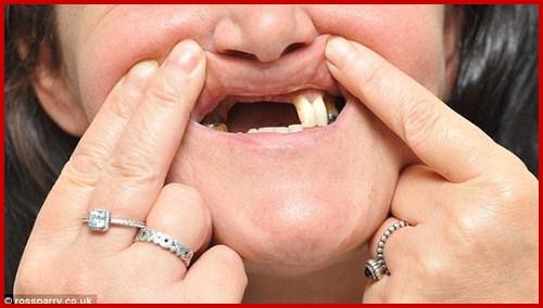 Hình ảnh cấy ghép implant và bọc răng sứ hai hàm 1