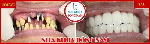 Hình ảnh cấy ghép implant và bọc răng sứ hai hàm 2