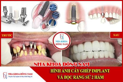 Hình ảnh cấy ghép implant và bọc răng sứ hai hàm