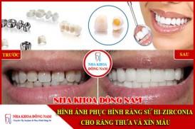 Hình ảnh phục hình răng sứ Hi-Zirconia cho răng thưa và xỉn màu