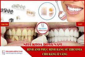 Hình ảnh phục hình răng sứ zirconia cho răng bị ố vàng
