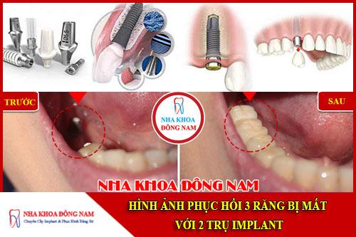 Hình ảnh phục hình 3 răng bị mất với 2 trụ implant
