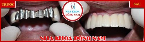Thay cầu răng sứ kim loại 1
