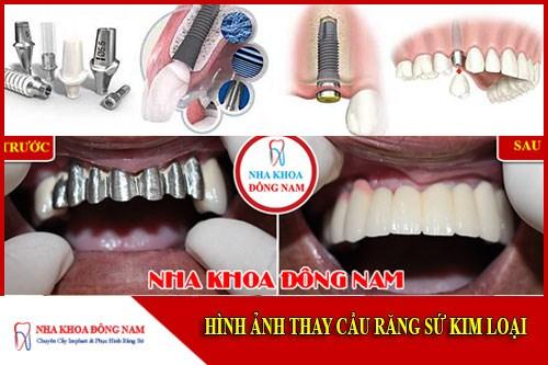 Thay cầu răng sứ kim loại