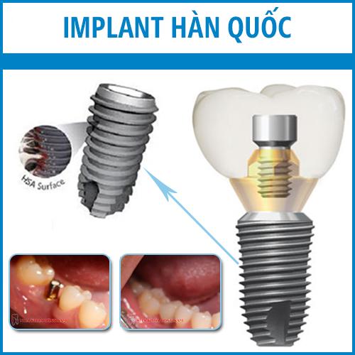 implant han quoc
