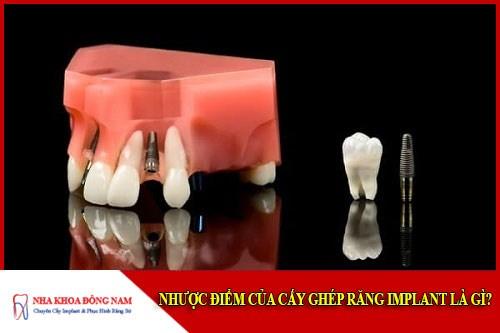 Nhược điểm của cấy nghép implant là gì