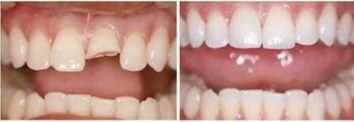 trám răng sữa bị gãy còn chân răng