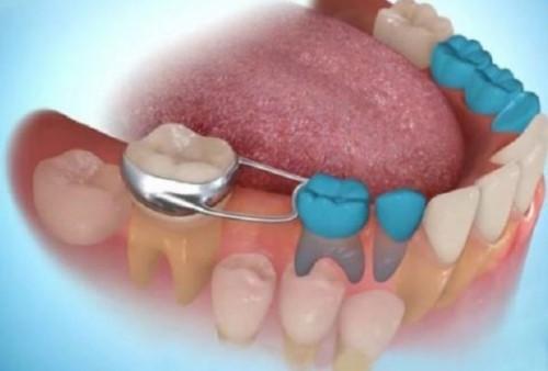 răng bị gãy còn chân răng có trồng được không