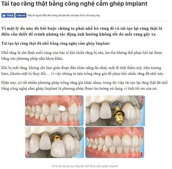 Tái tạo răng thật bằng công nghệ cấy ghép implant1