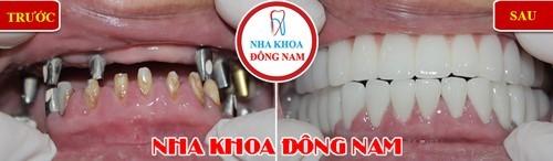 Cấy ghép cho cả 2 hàm răng bằng Implant