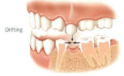 hậu quả của mất răng