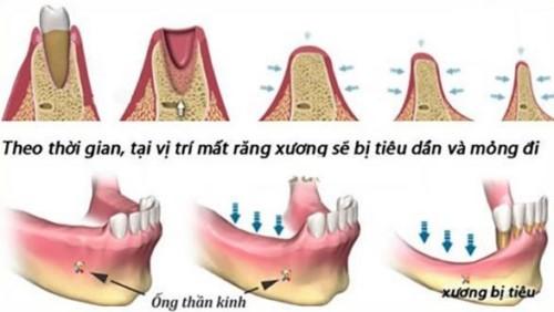 tiêu xương hàm khi mất răng lâu ngày