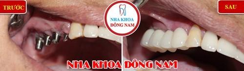 trồng 4 răng implant hàm trên