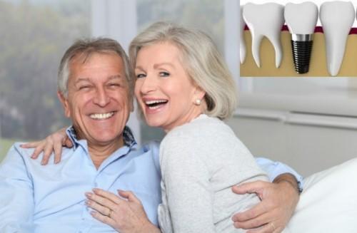 răng implant sử dụng vĩnh viễn