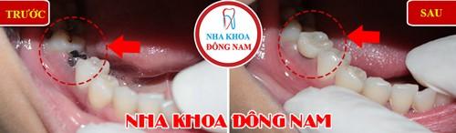 Cấy 1 trụ Implant hàm dưới