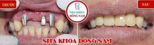 Cấy 3 trụ Implant gắn 4 răng cửa