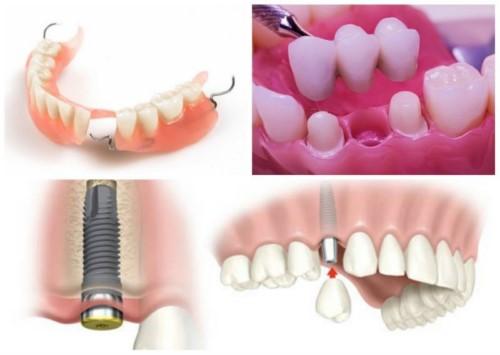 phương pháp trồng răng giả