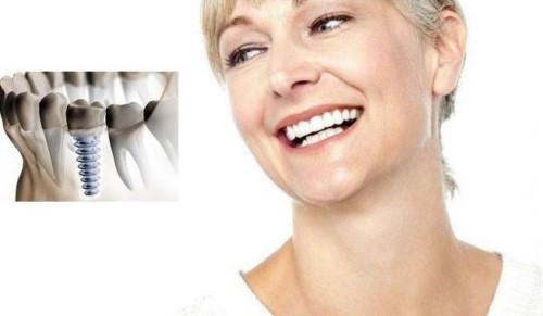 răng implant sử dụng lâu dài