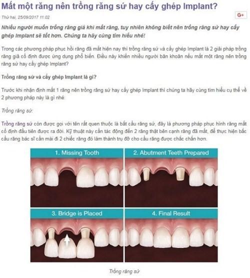 mất một răng nên trồng răng sứ hay cấy ghép implant