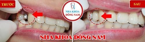 trồng 1 trụ implant răng hàm trên