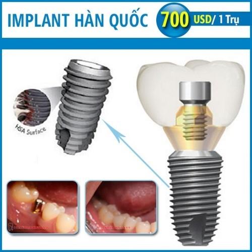 trồng răng implant nên chọn loại nào