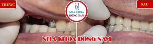 cấy ghép răng implant răng hàm trên