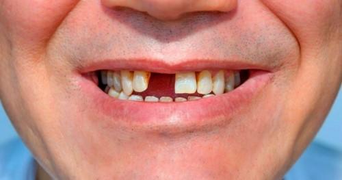 tác hại của mất răng