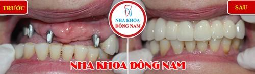 cấy implant răng hàm trên