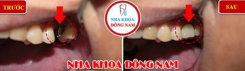 cấy 1 răng implant hàm trên