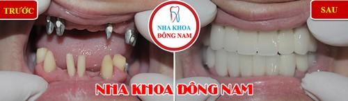trồng răng implant hàm trên và phục hình sứ 2 hàm
