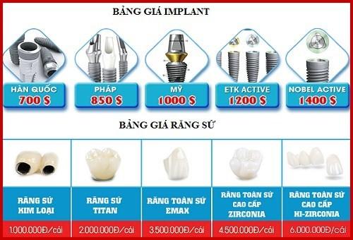 bảng giá implant và răng sứ