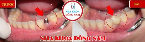 cấy implant răng hàm