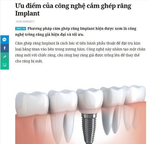 ưu điểm của công nghệ cắm ghép răng implant 1