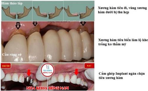 ưu điểm của công nghệ căm ghép răng implant 4