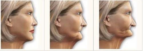 vì sao nhổ răng dẫn đến tiêu xương 1