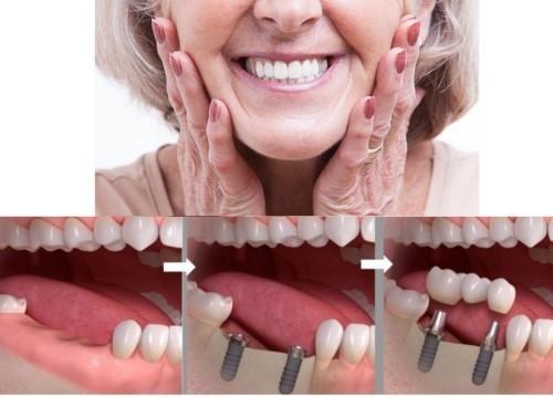 vì sao nhổ răng dẫn đến tiêu xương 3
