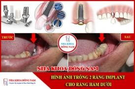 Trồng 2 răng Implant cho răng hàm dưới