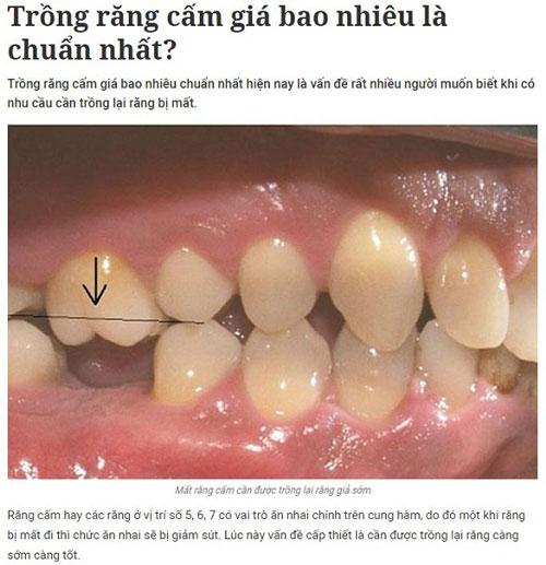 Trồng răng cấm giá bao nhiêu là chuẩn nhất 1
