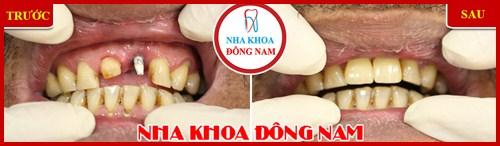 Trường hợp bệnh nhân cấy 1 trụ implant răng cửa 2